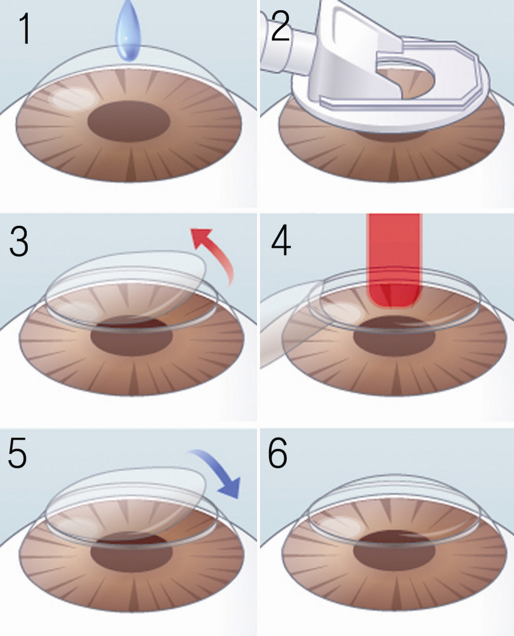 Do you know about LASIK, LASEK and Lens Implant Surgery?