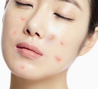 Pimples: Where do they come from?